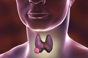 徐晓敏:中医如何治疗甲状腺癌?