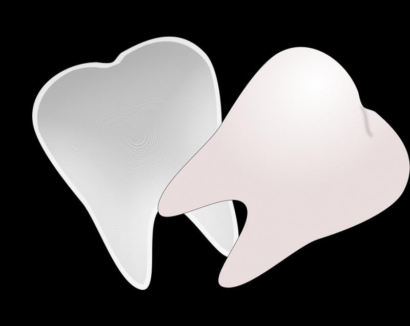 正规洗牙要多长时间洗牙如何护理